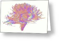 White Matter Fibres Of The Human Brain Greeting Card