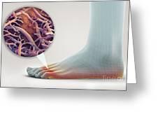 Athletes Foot Greeting Card