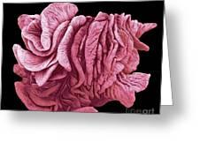 Fimbriae Of A Fallopian Tube, Sem Greeting Card