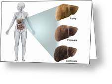 Stages Of Liver Disease Greeting Card