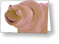 Bdelloid Rotifer, Sem Greeting Card