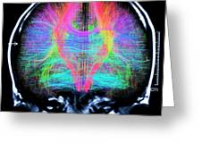 Brain Mri And White Matter Fibres Greeting Card