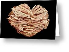 Kidney Stone Greeting Card