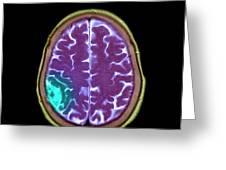 Meningioma Tumour Greeting Card