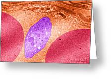 Platelet And Red Blood Cells, Tem Greeting Card