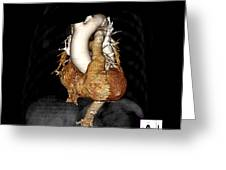 3d Ct Of Normal Heart Greeting Card