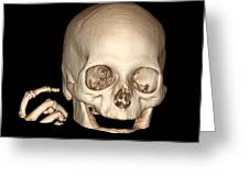 3d Ct Reconstruction Of Head And Hand Greeting Card