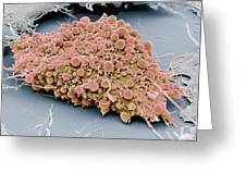 Mesenchymal Stem Cell, Sem Greeting Card by Science Photo Library
