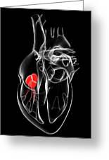 Heart Valve Greeting Card