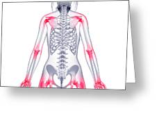 Joint Pain Greeting Card