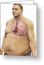 Obesity Greeting Card
