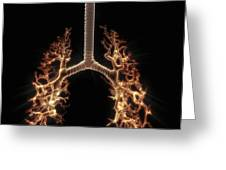 Bronchial Branches Greeting Card
