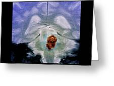 Brain Haemorrhage Greeting Card