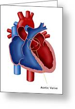Aortic Valve Greeting Card
