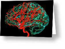 Blood Vessels Supplying The Brain Greeting Card