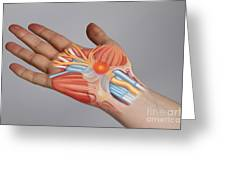 Carpal Tunnel Syndrome Greeting Card