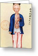 China Smallpox Greeting Card