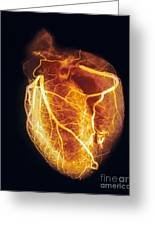 Colored Arteriogram Of Arteries Of Healthy Heart Greeting Card