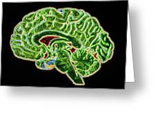 Coloured Ct Scan Of A Healthy Brain (side View) Greeting Card