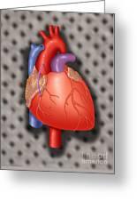 Coronary Vein Graft Greeting Card