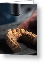 Dental Mold by Ktsdesign/science Photo Library
