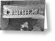 Diatom Greeting Card