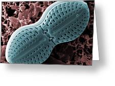 Diploneis Diatom, Sem Greeting Card by Science Photo Library