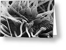 Fertilization In Rat Sem Greeting Card