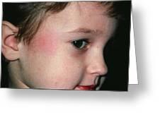 Fifth Disease: Slapped Cheek Mark On Boy Greeting Card