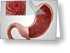 Gastric Ulcer Greeting Card