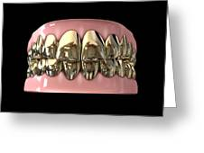 Golden Gangster Teeth And Gums Greeting Card by Allan Swart