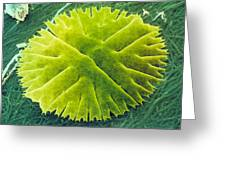 Green Alga, Micrasterias Greeting Card by Power And Syred
