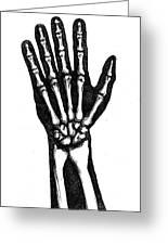 Hand Bones Greeting Card