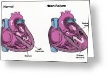 Healthy Heart Vs. Heart Failure Greeting Card