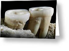 Homo Heidelbergensis Teeth Greeting Card