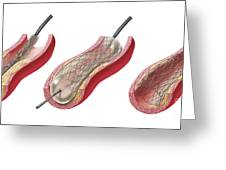 Insertion Of Stent Into Atherosclerotic Greeting Card