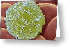 Leukaemia Cell, Sem Greeting Card