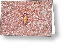 Liver Tissue Of A Cat Lm Greeting Card