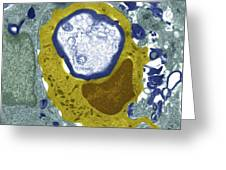 Macrophage Engulfing A Nerve Cell, Tem Greeting Card by Science Photo Library