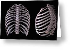Multiple View Of The Rib Cage Greeting Card