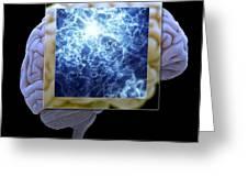 Neuron And Brain Greeting Card