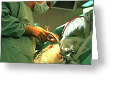 Neurosurgeon Performing Brain Biopsy Greeting Card