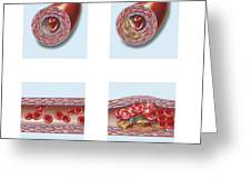Normal Artery Compared To Plaque Greeting Card