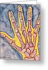 Opposing Thumb Greeting Card