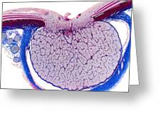 Optic Disk And Optic Nerve, Lm Greeting Card