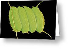 Scenedesmus Algae, Sem Greeting Card