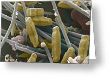 Sem Of Diatoms And Blue-green Algae Greeting Card by Power And Syred