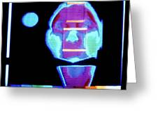 Thermogram Of Face Prior To Taking Alcoholic Drink Greeting Card