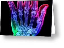 Thumb Fracture Greeting Card