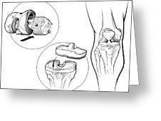 Total Knee Replacement Prosthetic Greeting Card